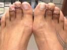 Kinh hoàng trào lưu phẫu thuật rút xương chân của chị em