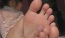 Bé gái 11 tuổi đã cao 1m70, bác sĩ chỉ ra đây là dấu hiệu của căn bệnh nguy hiểm