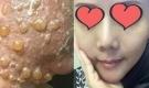 'Phẫu thuật' căng da mặt khiến cả khuôn mặt người phụ nữ bị bao phủ trong những vết phồng rộp kinh hoàng