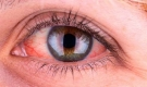 Thấy mắt đỏ ngầu sau khi ngủ dậy hãy đề phòng với căn bệnh nguy hiểm, rất nhiều người mắc phải