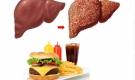 6 thực phẩm khiến gan 'nhàu nát' từng ngày, dừng ngay nếu không muốn ung thư gan 'ghé thăm'