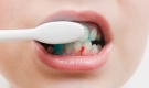 Chảy máu chân răng: Dấu hiệu cảnh báo nhiều bệnh nguy hiểm