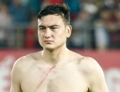 http://xahoi.com.vn/ly-do-kho-ngo-an-sau-vu-hanh-hung-gay-xon-xao-cua-le-sy-manh-voi-dang-van-lam-277679.html
