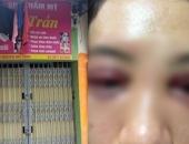 http://xahoi.com.vn/vu-spa-lam-rach-mi-mat-khach-hang-co-so-khong-phep-khong-hop-dong-thue-nha-285231.html