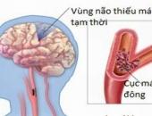 http://xahoi.com.vn/5-bai-thuoc-dan-gian-cuc-tot-cho-nguoi-bi-thieu-mau-nao-286214.html