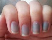 Dấu hiệu những căn bệnh nguy hiểm được biểu hiện qua đôi bàn tay