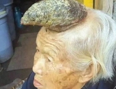 http://xahoi.com.vn/can-benh-bien-con-nguoi-thanh-ky-lan-khoa-hoc-khong-the-giai-thich-309313.html