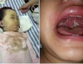 Mới 14 tháng bé đau họng đã tử vong, bác sĩ cảnh báo thiếu sót chết người của mẹ mà nhiều người cũng mắc