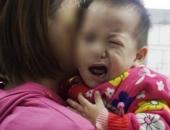 Con méo mồm vì mẹ tắm khuya, bác sĩ cảnh báo sai lầm khiến con nhập viện khi trời lạnh