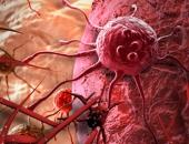 90% người Việt có thói quen tưởng vô hại gây ung thư, teo não, giết chết nhiều người hơn HIV
