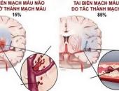 https://xahoi.com.vn/tai-bien-mach-mau-nao-cap-cuu-the-nao-de-tranh-tu-vong-345497.html