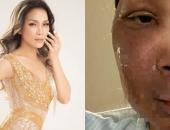 https://xahoi.com.vn/hong-ngoc-dang-anh-guong-mat-bi-bong-sau-vu-no-noi-xong-hoi-355537.html