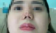TP.HCM: Cô gái 22 tuổi suy sụp tinh thần, uống 30 viên thuốc tự tử vì bị bác sĩ thẩm mỹ 'dỏm' phá nát mũi