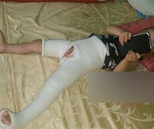 Tuyên Quang: Cô giáo mầm non đạp gãy xương đùi cháu nhỏ 3 tuổi?