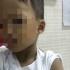 Bé trai 3 tuổi đi học mẫu giáo bị cô giáo đánh gẫy tay