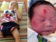 'Nghẹn lòng' những thai phụ đến chết vẫn bảo vệ con