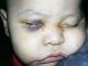 Bác sĩ phẫu thuật nhầm, bé trai 1 tuổi bị mù mắt