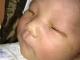 Em bé bị mù một mắt vì chụp hình quên tắt đèn flash