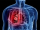 Bệnh ung thư phổi nguy hiểm như thế nào?