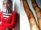 Bé gái 8 tuổi bị cha đẻ đánh tím chân, nhập viện: Người mẹ quyết giành lại quyền nuôi con