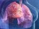 Thấy cơ thể có 2 chỗ lồi và 3 chỗ đen sạm, cẩn thận phổi đang 'thủng lỗ chỗ' từng ngày