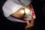 Gặp 141, lộ 23 gói nghi ma túy giấu ở vùng kín