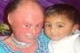 Bệnh lạ: Cô gái có làn da như loài rắn hổ mang