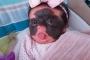 4 việc làm của mẹ bầu vô tình khiến trẻ sinh ra mang vết bớt xấu xí ở trên mặt