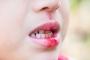 4 triệu chứng điển hình thường xuất hiện trong giai đoạn đầu của bệnh ung thư miệng