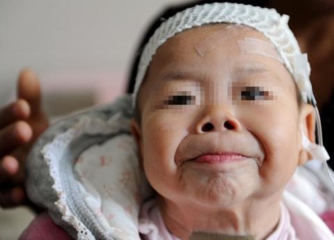 Các bác sĩ bệnh viện cho biết, hiện bệnh viện chưa tìm ra phương pháp chữa  trị cho bé Hinh Hinh, do đó rất mong các bệnh viện có kinh nghiệm chữa ...