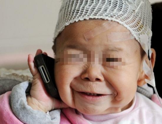 Bé gái Hinh Hinh, 1,5 tuổi mắc bệnh da hiếm thấy