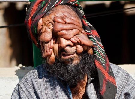 Mohammad Latif Khatana với khối u nặng nề trên mặt