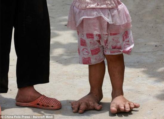 Bàn chân của Yu Yu ngày càng phát triển phình to...