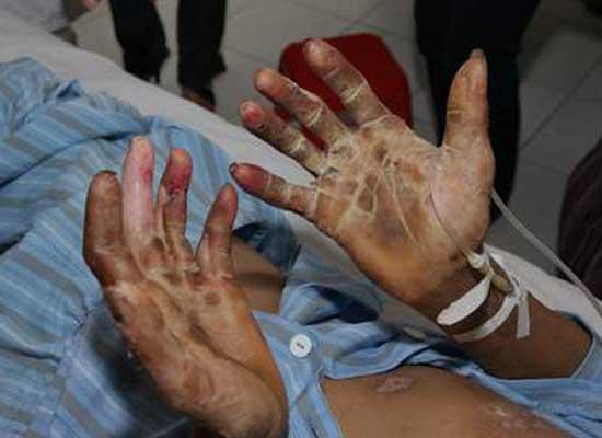 Một bệnh nhân hoại tử chân tay do nhiễm liên cầu lợn