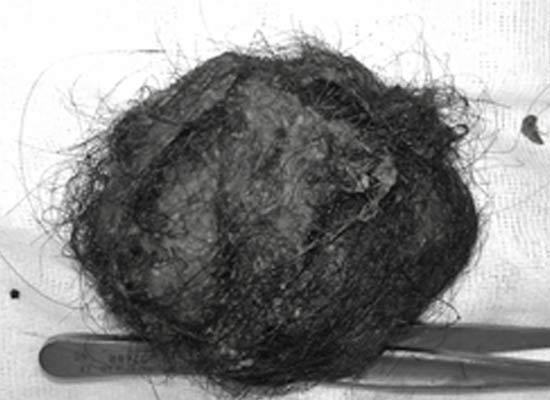 Búi tóc nằm trong dạ dày của bé. Ảnh: H.L