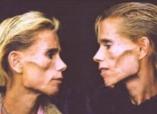 Cặp đôi song sinh Clare và Rachel Wallmeyer