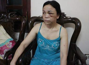 Mẹ của nữ sinh Nga bị nhóm thanh niên đánh gây thương tích.