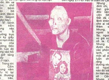 Khuôn mặt bị biến dạng của Cẩm Nhung sau khi bị tạt axit