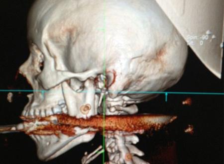 Hình ảnh chụp cho thấy cách cây lao đâm qua miệng và cổ người phụ <a href=