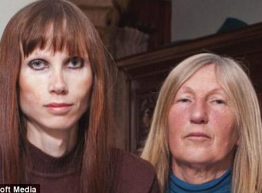 Helen Gillespie đã phải chịu đựng với chứng biếng ăn trong 20 năm qua.