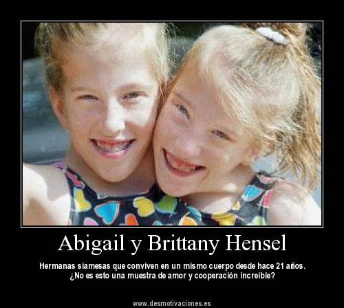 the gallery for gt abigail loraine hensel and brittany