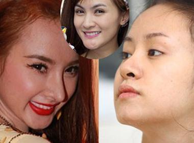 Nhìn tấm gương Angela Phương Trinh, Bà Tưng vững tin để phẫu thuật thẩm mỹ