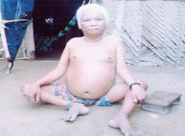 Người đàn ông mồ côi khuyết tật bệnh nặng sống bơ vơ