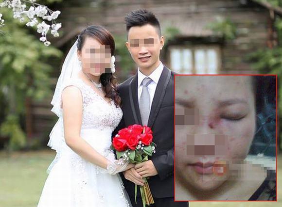 Lộ mặt 'bầm dập' của cô gái bị chồng chưa cưới đánh và khoe trên Facebook