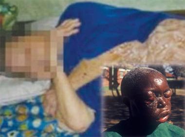 Nóng 24h: Dịch Ebola sang Thái Lan, cụ bà 85 tuổi bị hiếp dâm