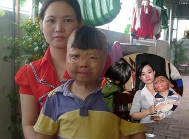 Nhói lòng cuộc sống của bé trai bị bố đốt 3 năm trước