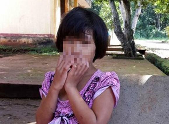 Quặn lòng bé gái bị mẹ ruột cắt gân chân tay, bỏ đói