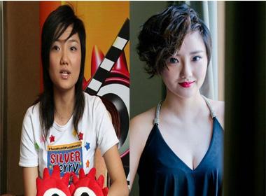 Nữ ca sĩ Trung Quốc lộ diện sau khi tốn 2 tỷ đồng thẩm mỹ