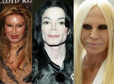 7 thảm họa thẩm mỹ ở Hollywood
