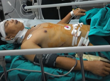 Chuyển lái xe khách gặp nạn ở Lào Cai về Hà Nội